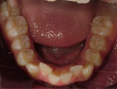 Lower Incisor alignment