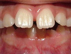 Phase I (mixed dentition) of severe overbite (Herbst appliance)
